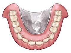 金属床入れ歯(自費診療の入れ歯)
