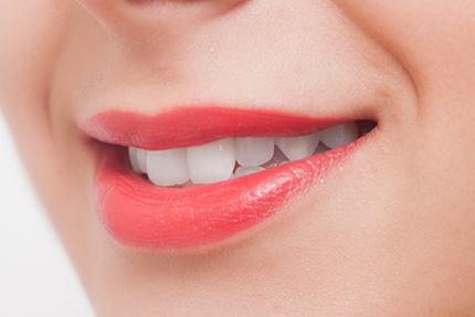 セラミック治療で手に入れる、白く美しい歯