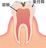 象牙質齲蝕(C2)